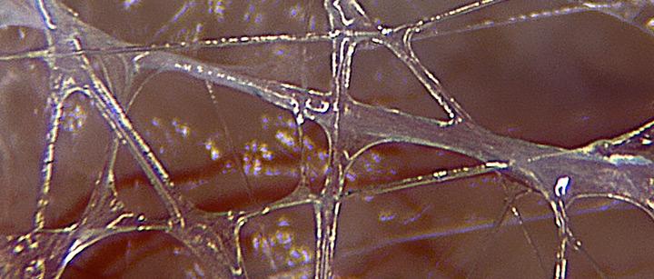Fascia Adhesion (Vidhäftning)